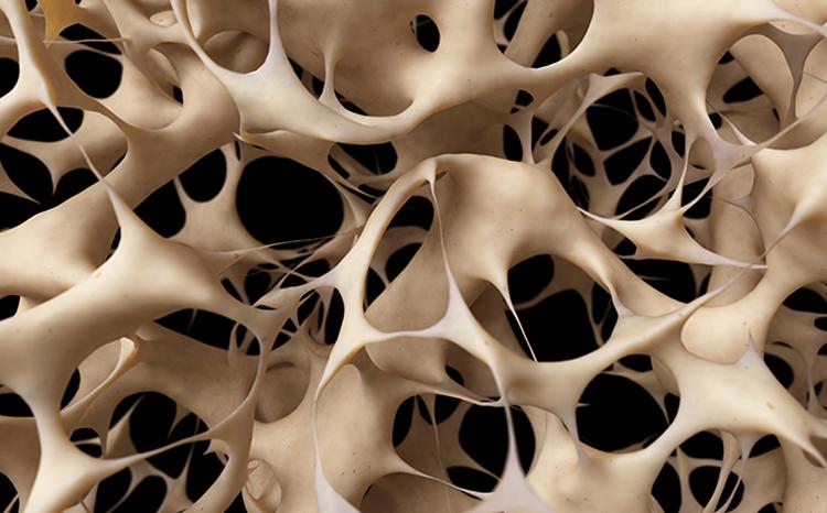 L'OSTÉOPOROSE, LA MALADIE DES OS FRAGILES